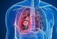 正确的吸烟过肺方法(浅析正确吸烟方法)