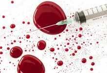 熊猫血是什么血型(一文详解熊猫血血型及其人特征)