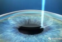 近视眼手术疼吗(手术价格以及过程、术后注意