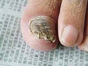 趾甲老往肉里长,医生教你一招,改善嵌甲扎肉疼