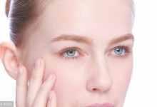 产后怎么去除脸上的斑?原因以及祛斑几种方法