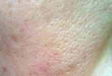 毛孔粗大用什么护肤品?缩小毛孔最有效的方法