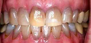 四环素牙如何变白?四环素牙变白偏方