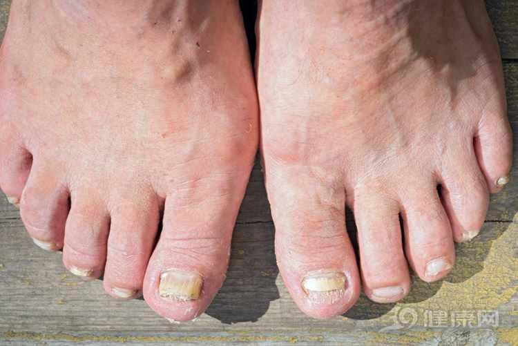 灰指甲的初期症状?怎么判断自己得了灰指甲